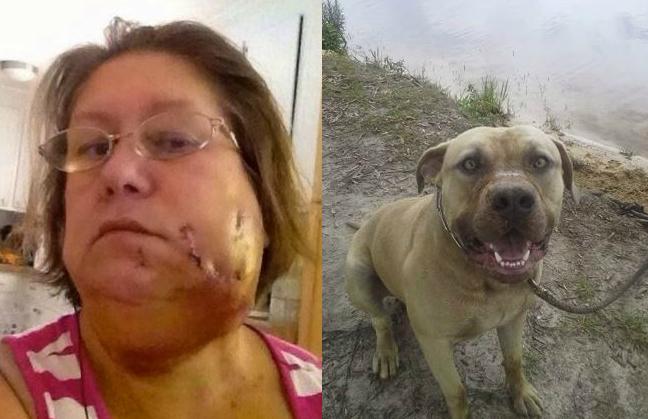 Mujer fue atacada en la cara por un perro durante un Ice Bucket Challenge