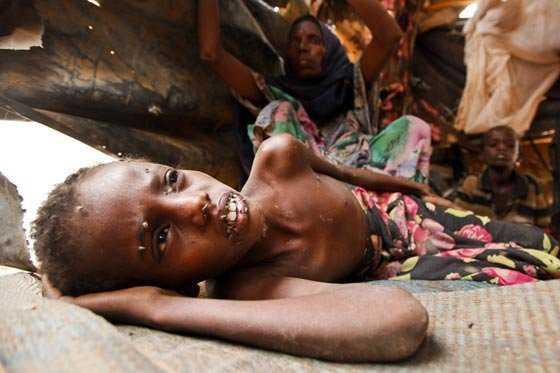El hambre persiste en Etiopía pese al fin de la sequía