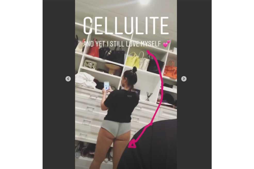 Demi Lovato se muestra al natural con sus estrías