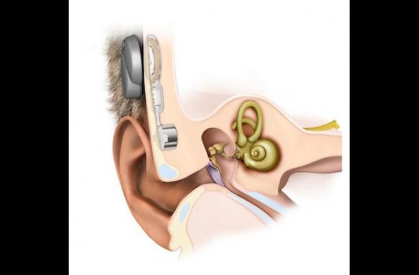 Implante parece ayudar a los niños sordos